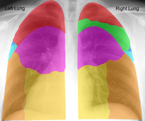 Review Segments Of Lungs Posteriorly Ct Scan Overview Chest